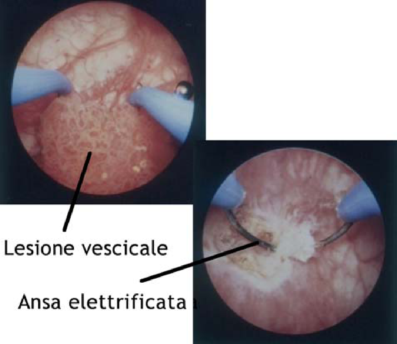 come riconoscere il papilloma virus nelluomo