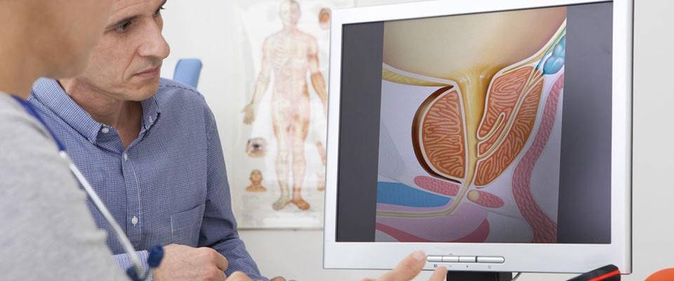 cancerul de prostata si alcoolul cancer pulmonar biodescodificacion