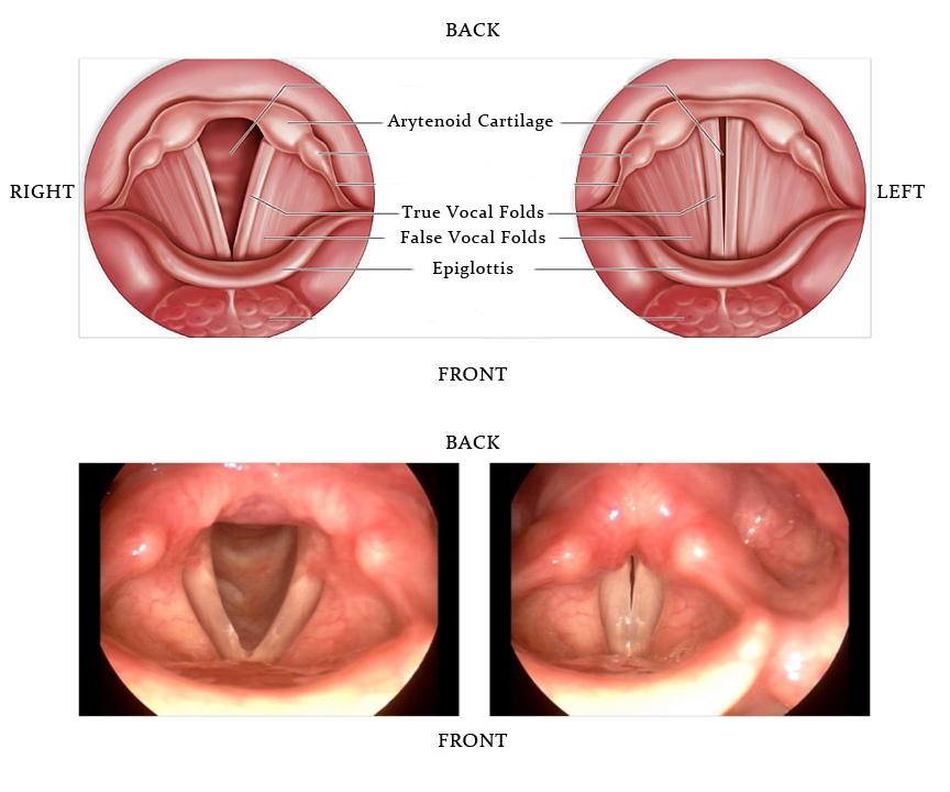 hpv cervix removal virus del papiloma humano concepto