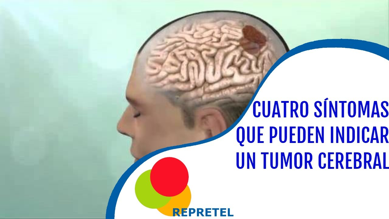 cancer cerebral etapa final