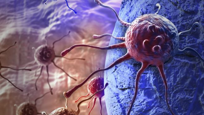 cancer que es oms