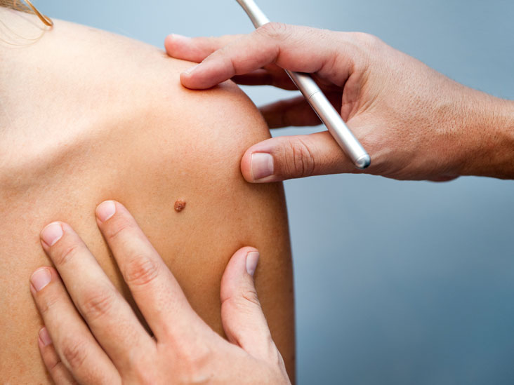hpv virus homeopathic treatment