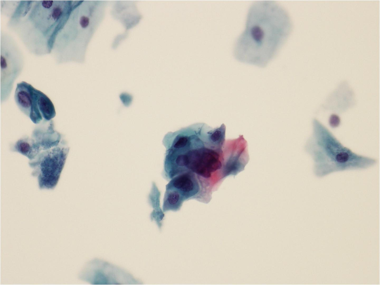 que significa hpv normoestrogenico cancerul de san la barbati simptome