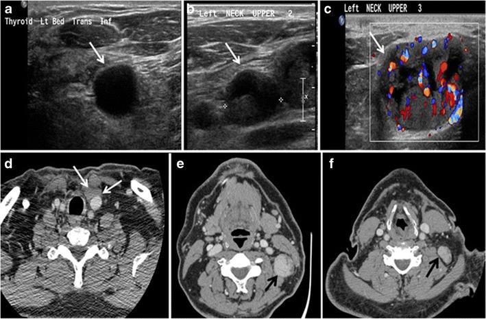papillary thyroid cancer neck metastasis