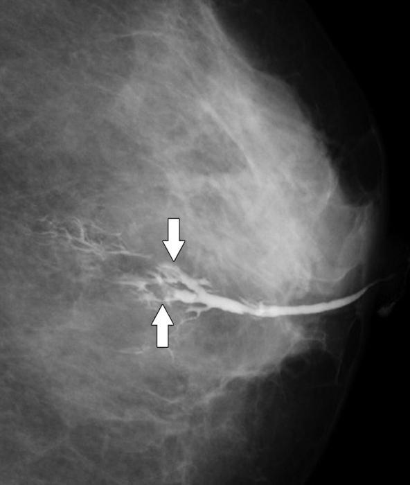 papilloma al seno sintomi skin papilloma excision