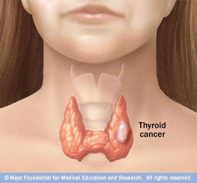 cancer renal neoplasia cancer testicular resumen