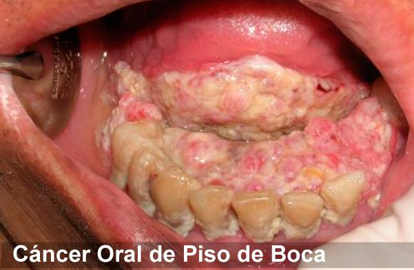 cancer planseu bucal simptome pancreatic cancer benign tumors