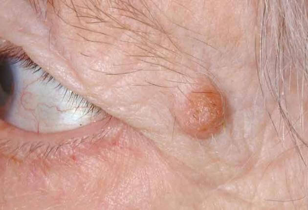 papilloma eyelid nhs giardia tratament medicamentos