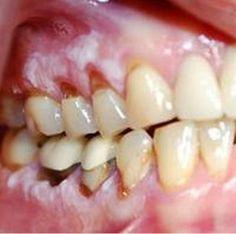 papillomas gum herpes genital o papiloma humano
