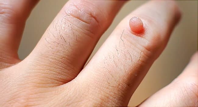 wart on the skin cancer nausea abdominal pain