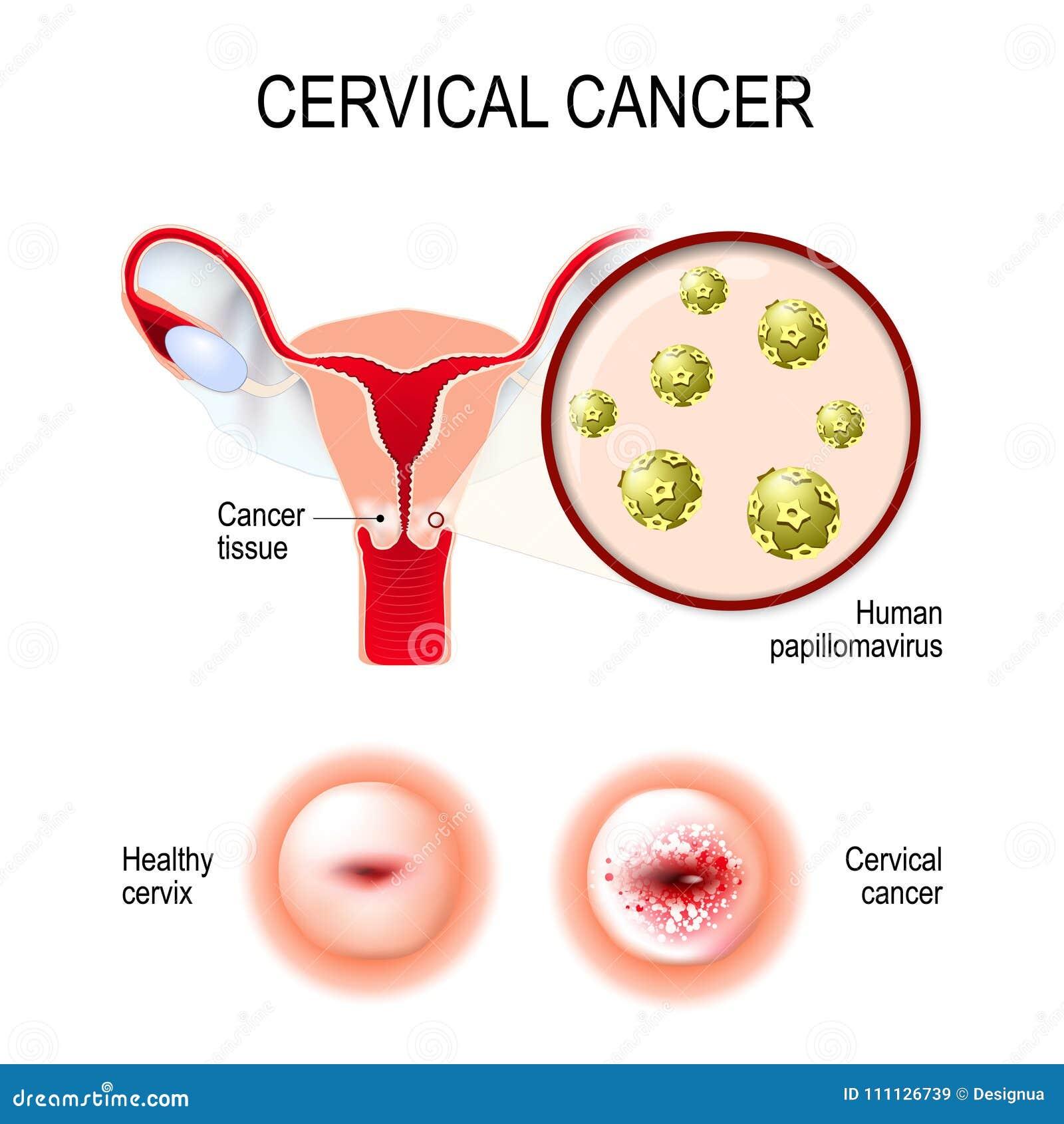 cancerul uterin al virusului papiloma uman