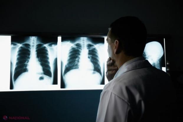 cancerul de plamani se transmite test hiv anonimo napoli