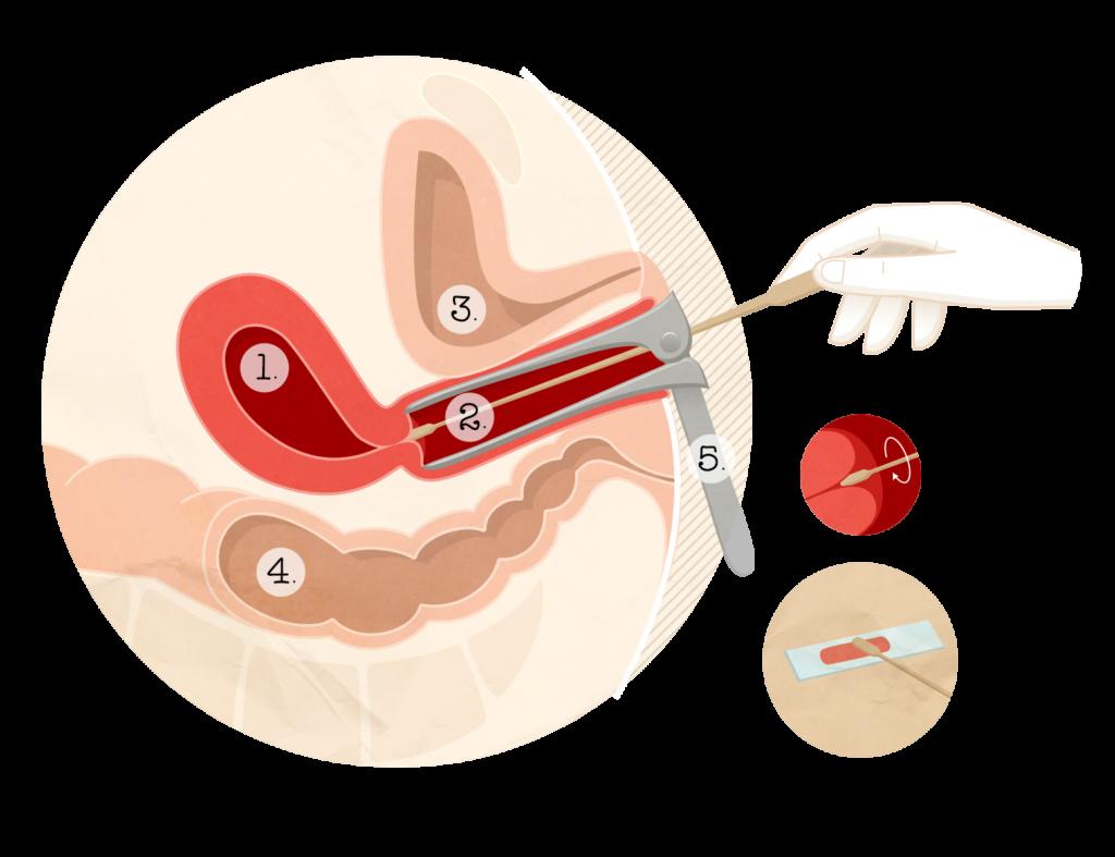 papillomavirus stade)
