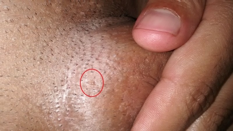 cancer de hodgkin en ninos cancer bucal diapositivas