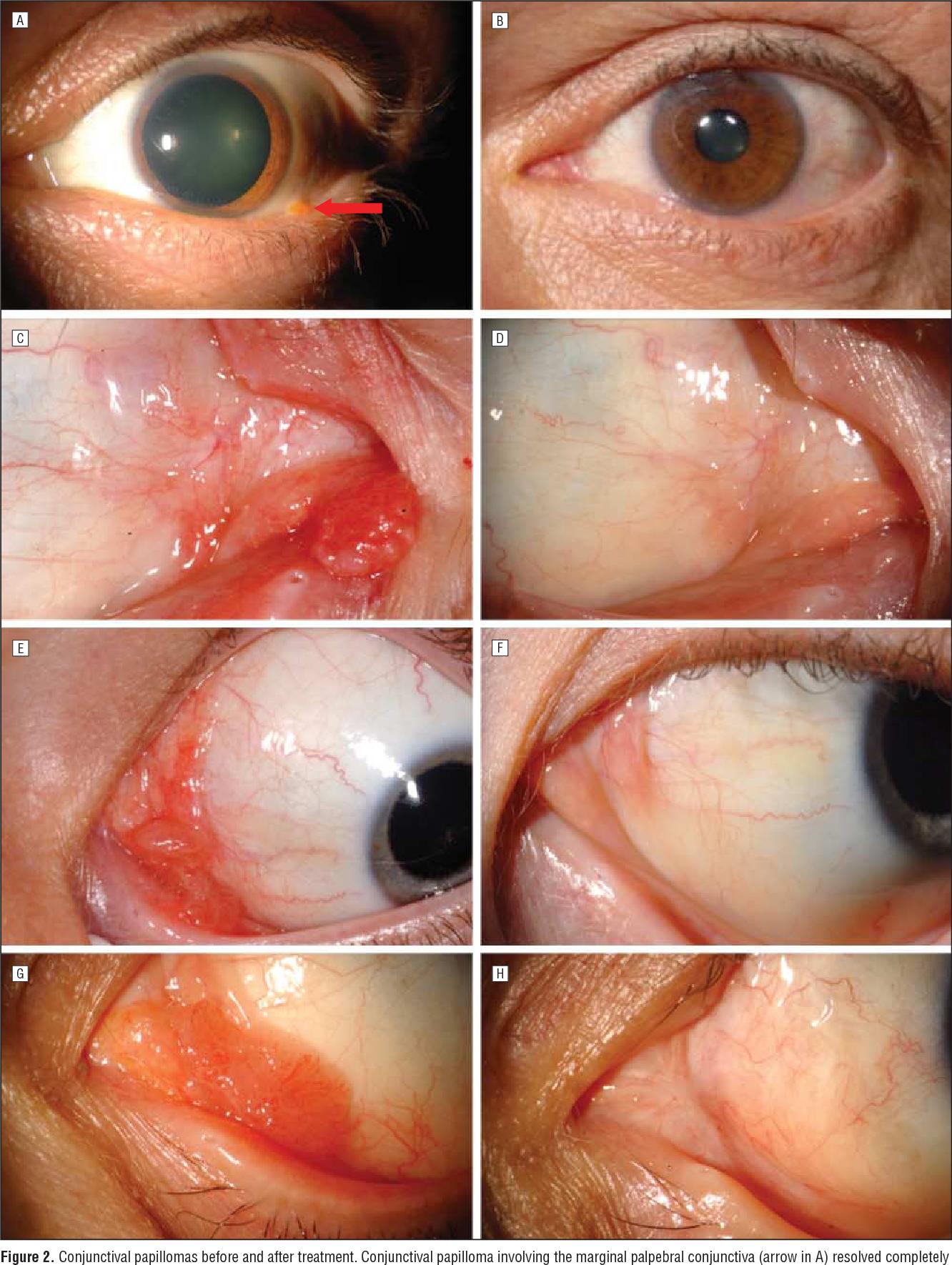 parazitii album mp3 papillomas eyelid removal