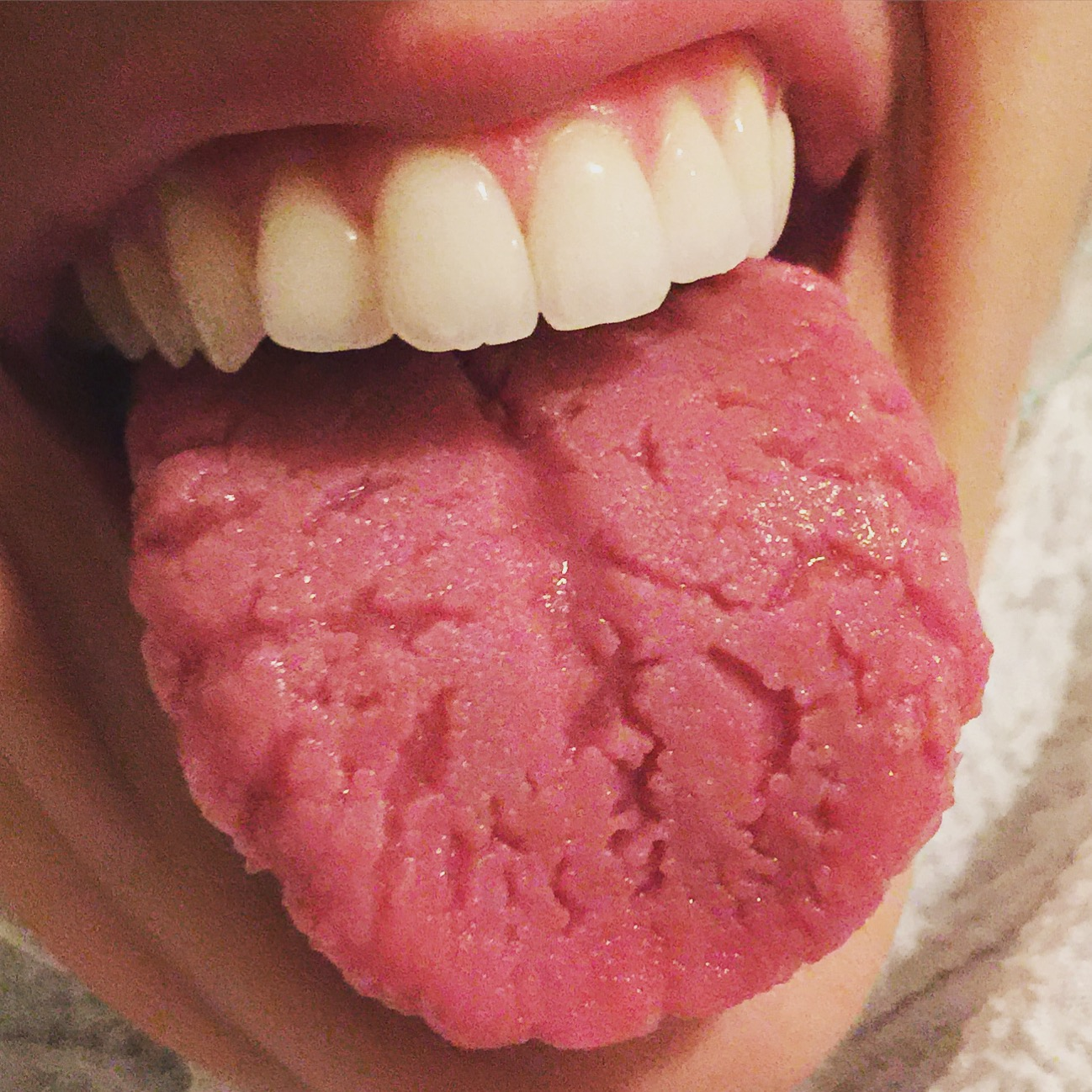 papilloma in mouth nhs sarcoma cancer ppt