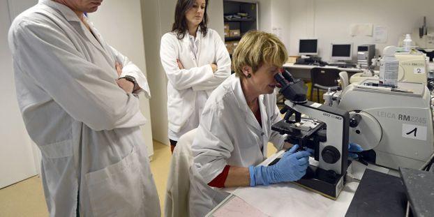 vaccin papillomavirus et frottis squamous papilloma tongue images