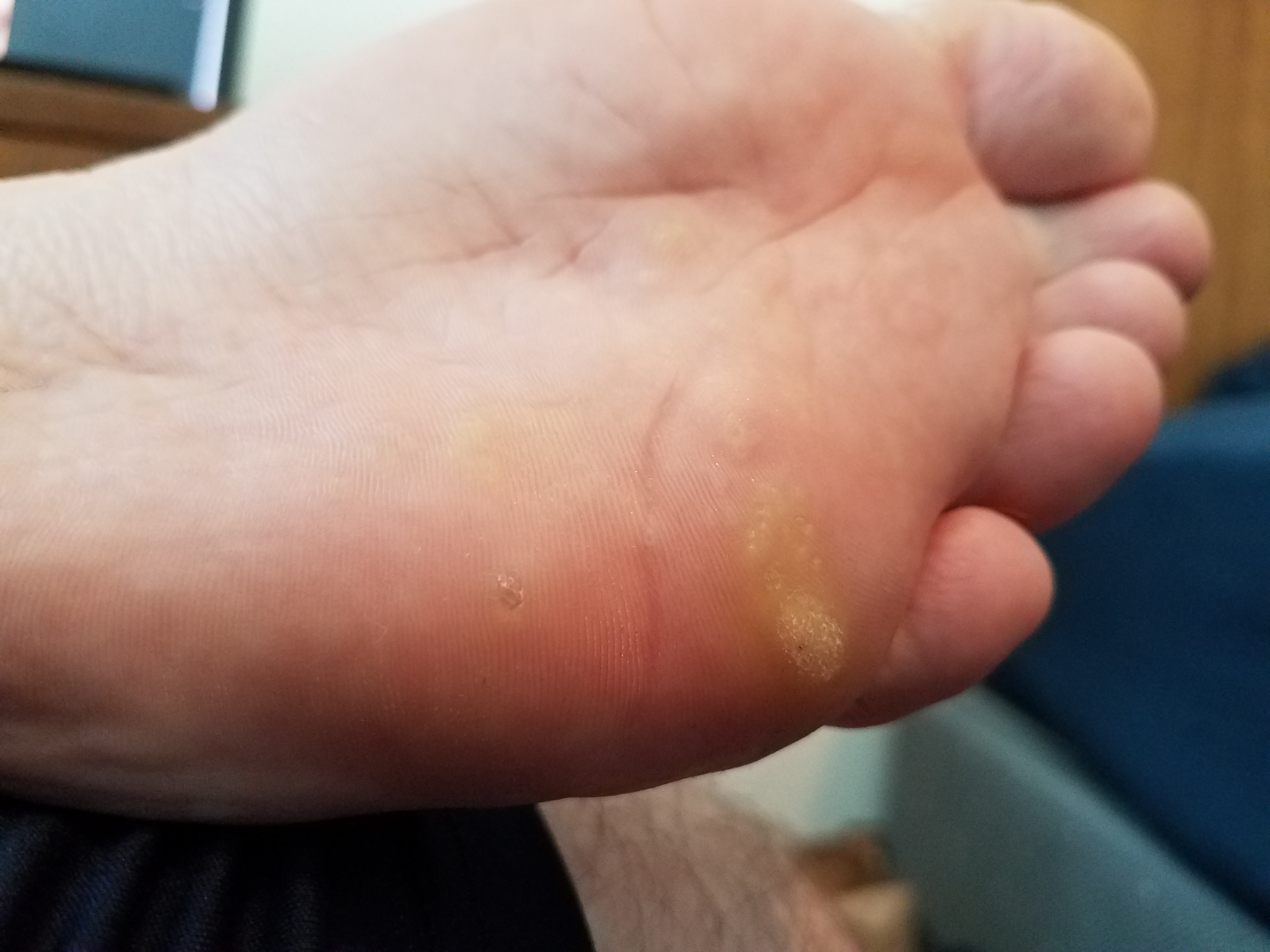 foot wart vinegar papiloma humano pie tratamiento