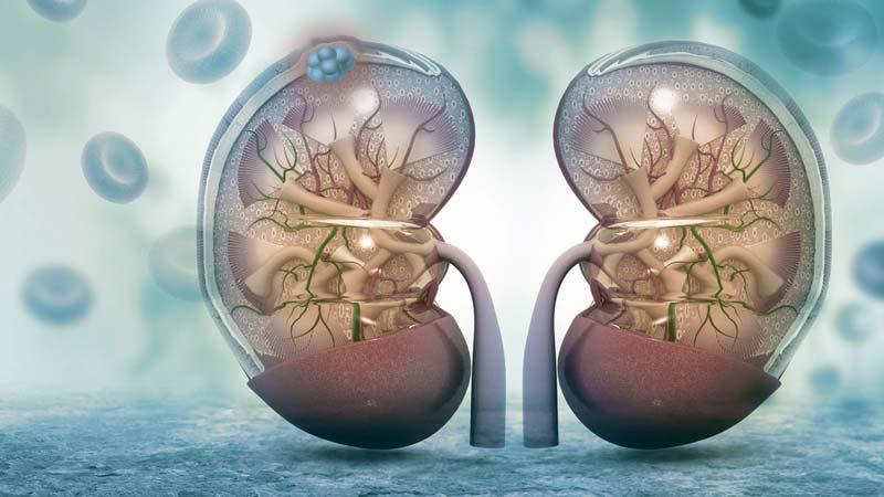 cancer renal celulas claras sobrevida detoxifierea colonului cu sare de mare