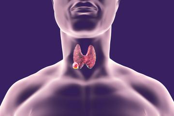 cancer la sange cauze sintomas de cancer de garganta causado pelo hpv