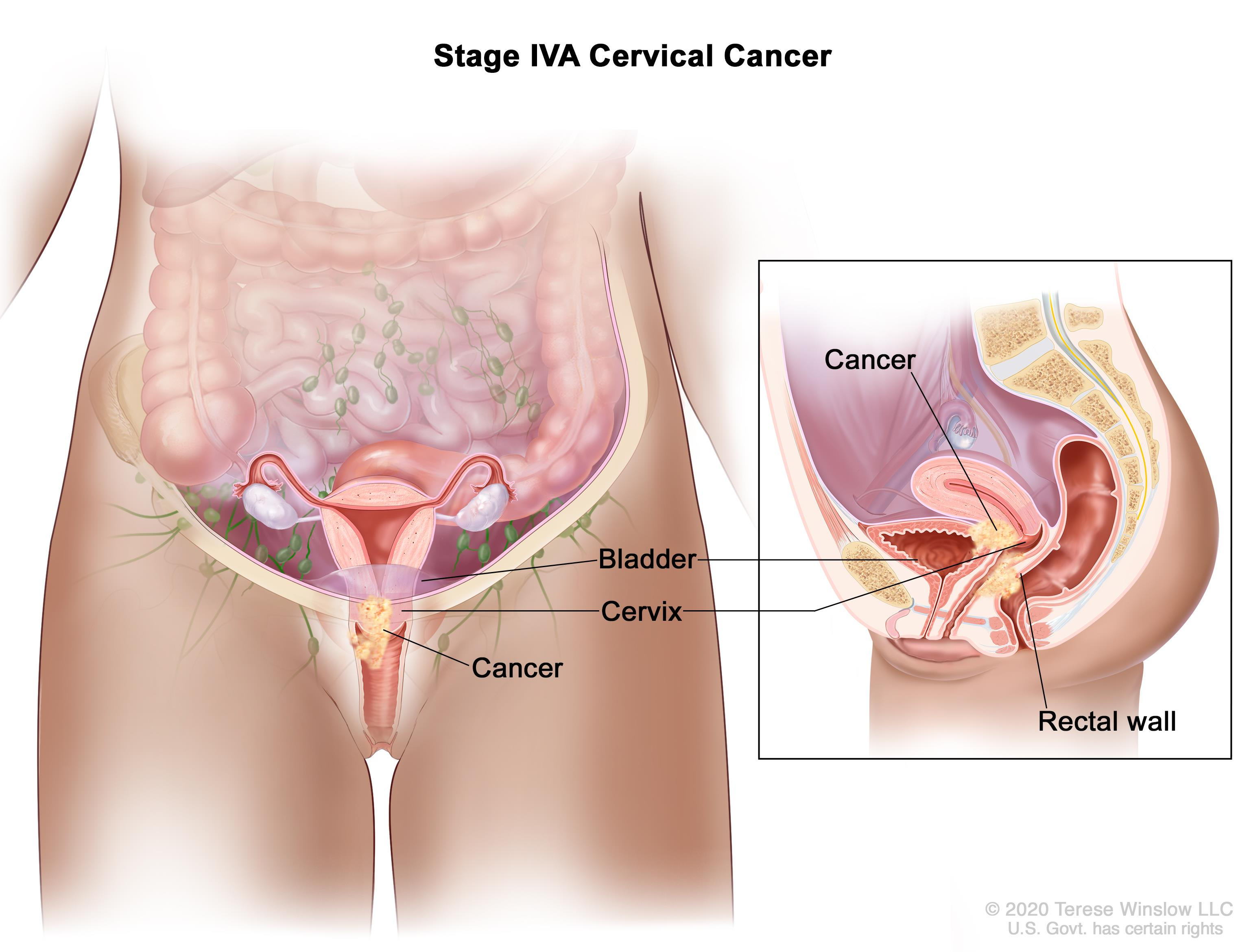 cervical cancer metastatic sites hpv and gardasil vaccine