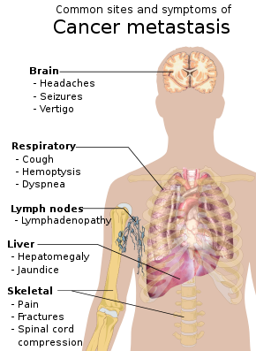 papilloma virus e lesioni papiloma virus humano cura