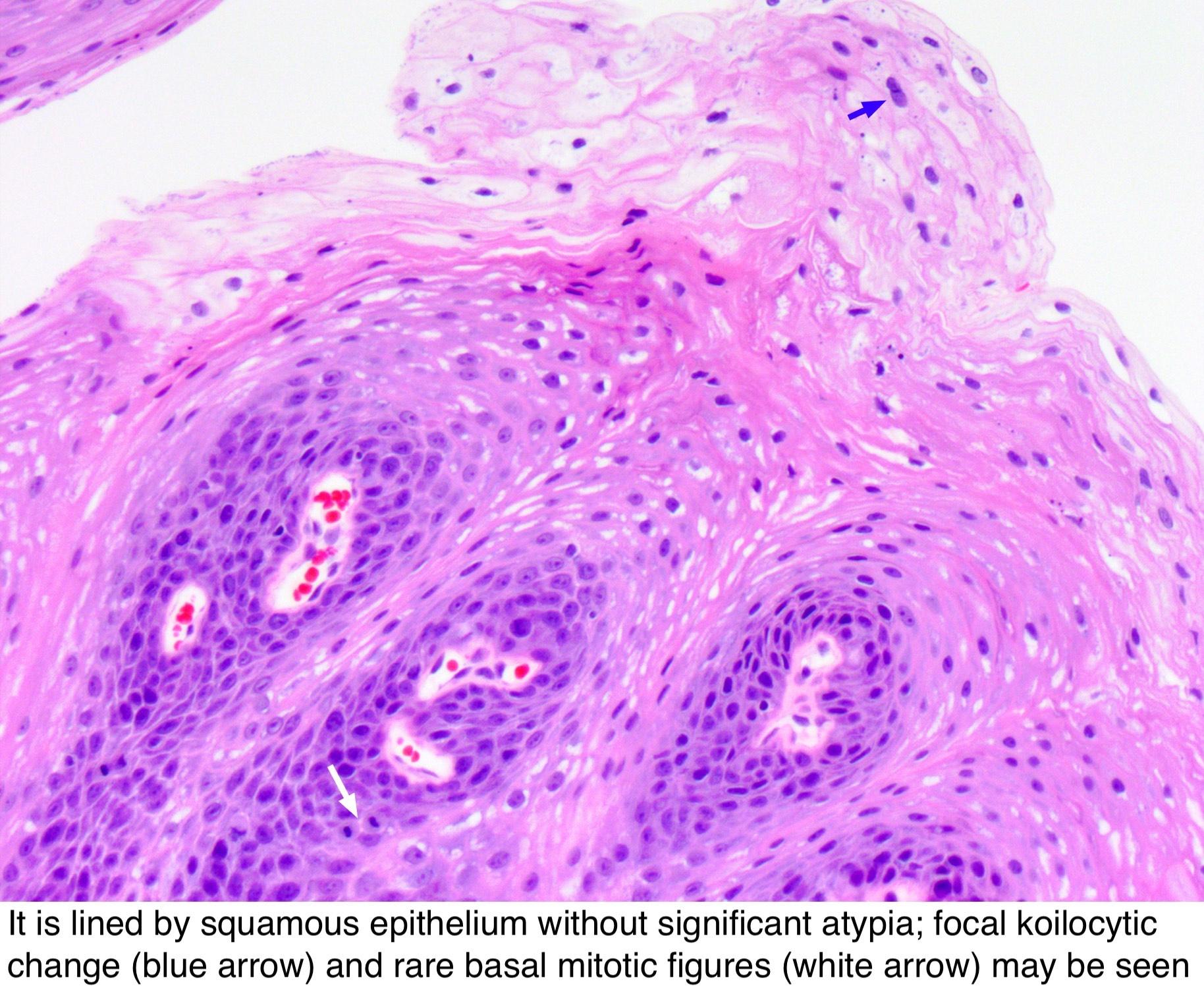 keratinizing squamous papilloma