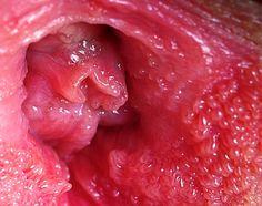 vestibular papillomatosis irritation human papillomavirus infection medication