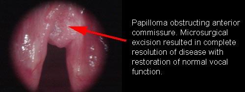hpv in larynx hoe loop je hpv virus op