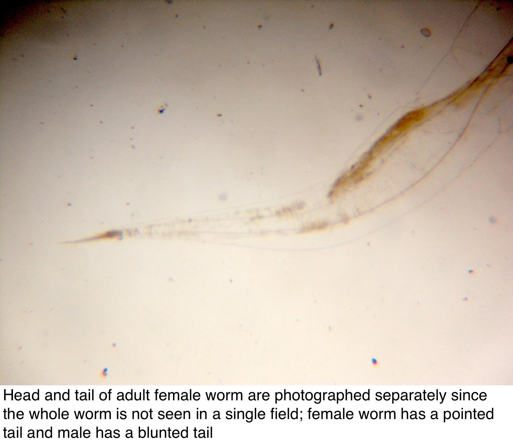 enterobius vermicularis nose bacterie 3+