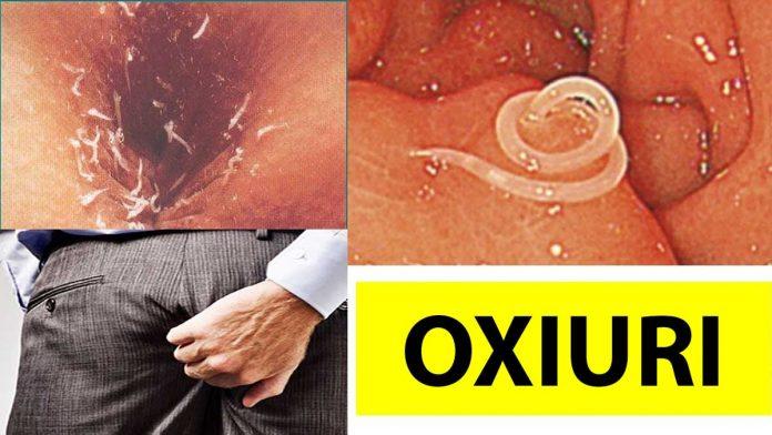 tratament pentru paraziți intestinali