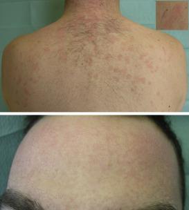 papilloma virus pe piele