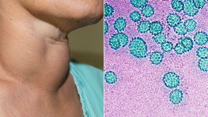 hpv transmitted by saliva parazitii omul din liftul tau
