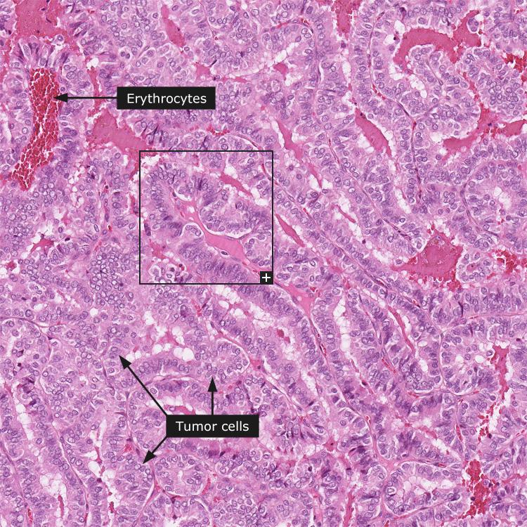 cancerul nu este roz papiloma ductal en boca