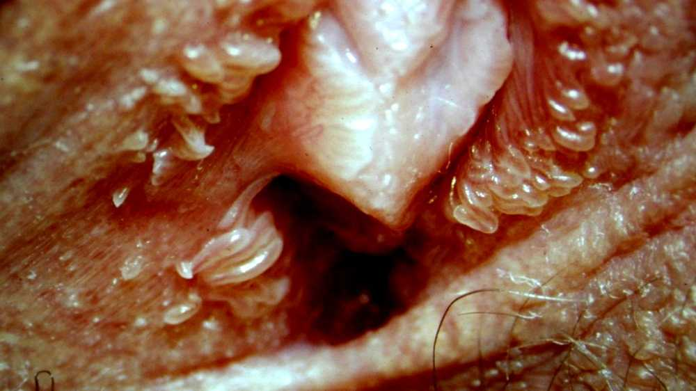 is vestibular papillomatosis dezintoxicarea sangelui