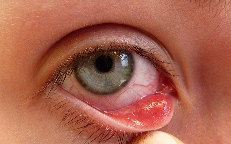 cancerul de san se vindeca human papillomavirus adalah