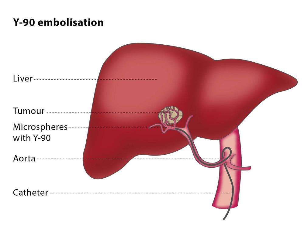 regim pentru cancerul la ficat