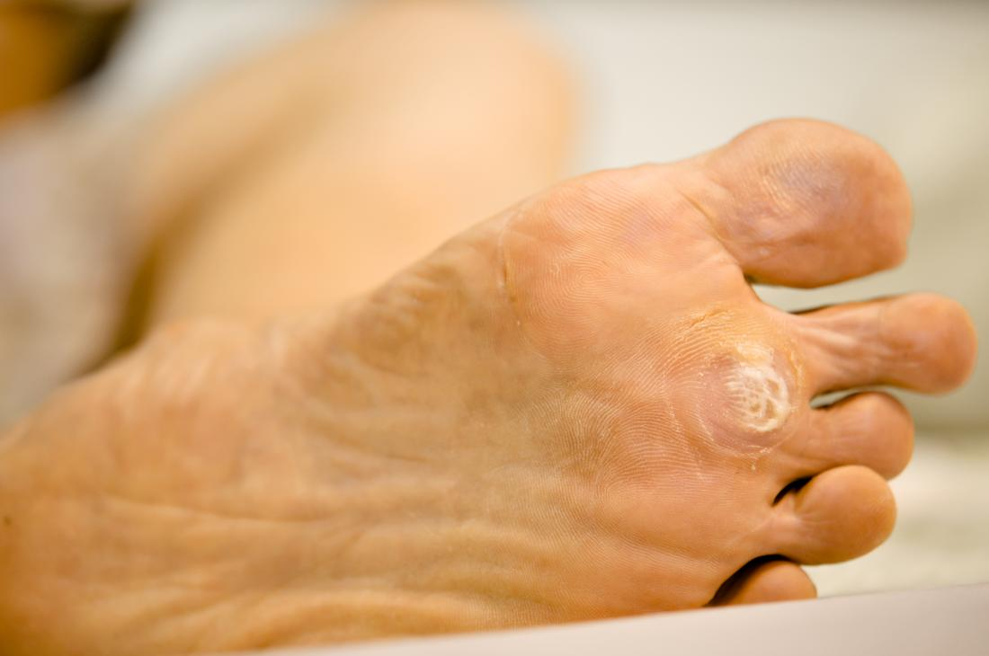 wart treatment gone wrong tratament pt raceala si gripa