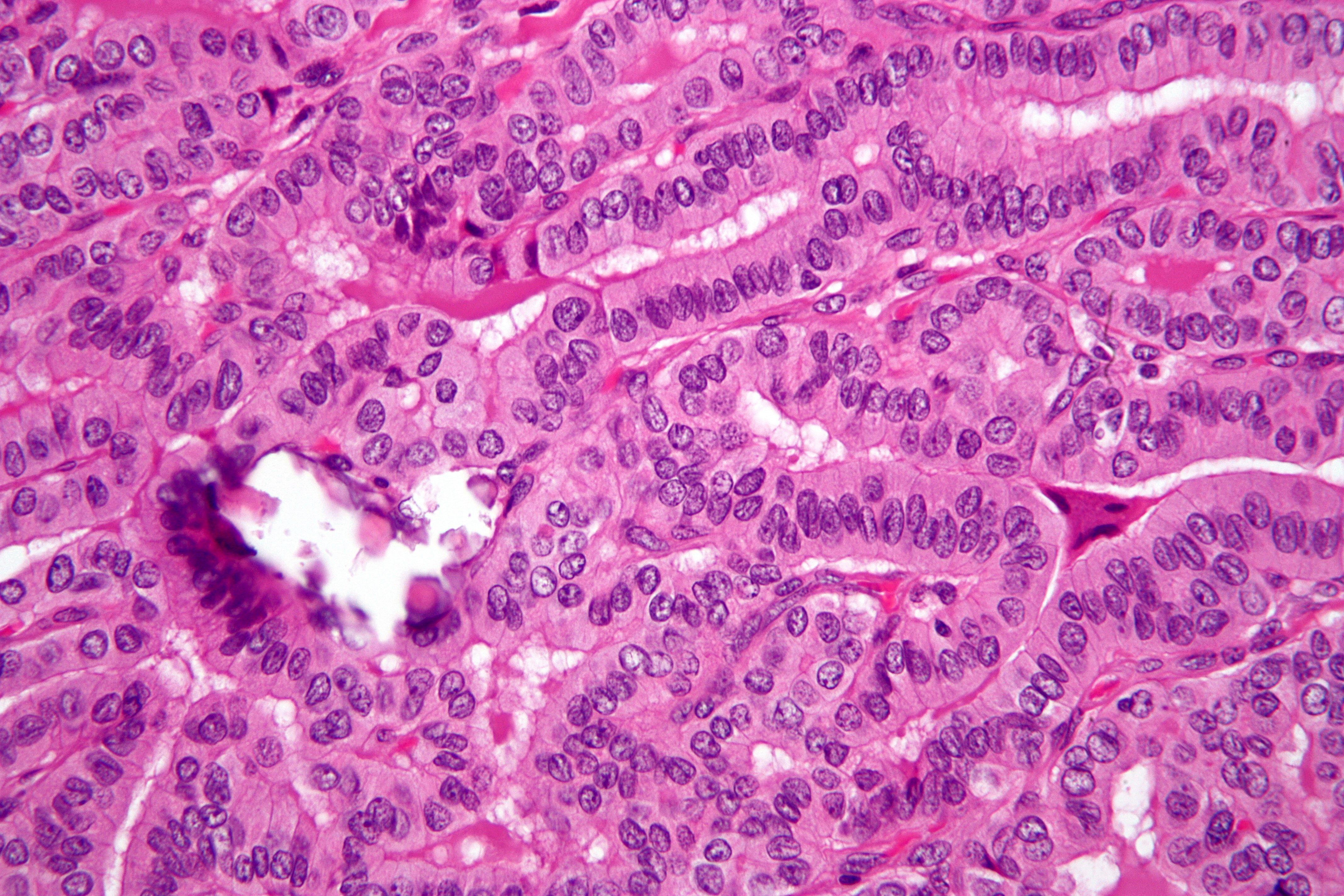 papillary thyroid cancer with tall cell variant
