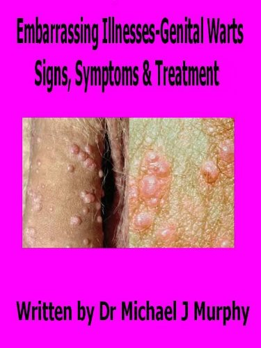 wart virus on fingers cancer limfatic in ultima faza