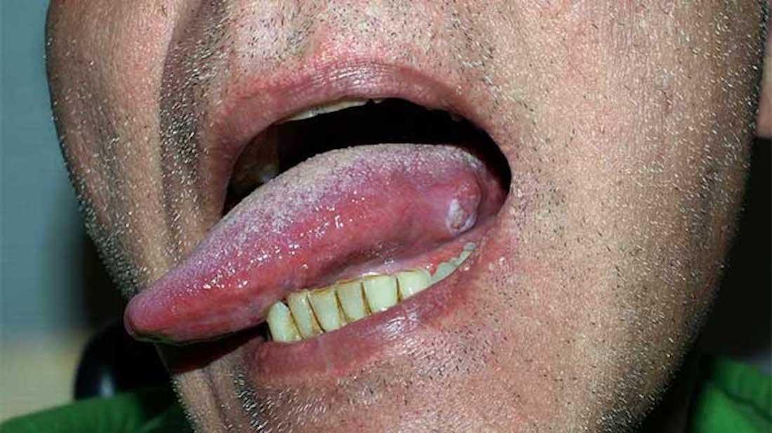 hpv in mouth nhs