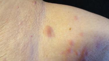 pancreatic cancer peritoneal washings papillomavirus ganglions symptomes