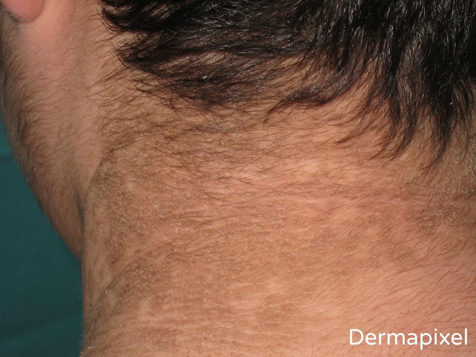 papilomatosis reticulada y confluente tratamiento