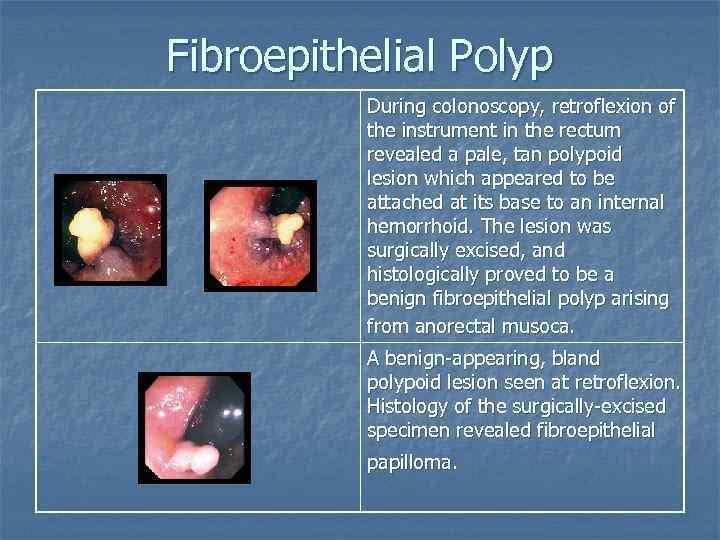 fibroepithelial papilloma polyp