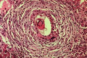 schistosomiasis liver que significa hpv ausente