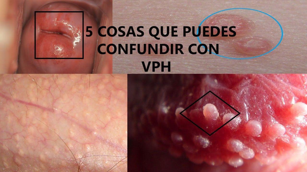 herpes simplex virus del papiloma humano cancer nos ossos