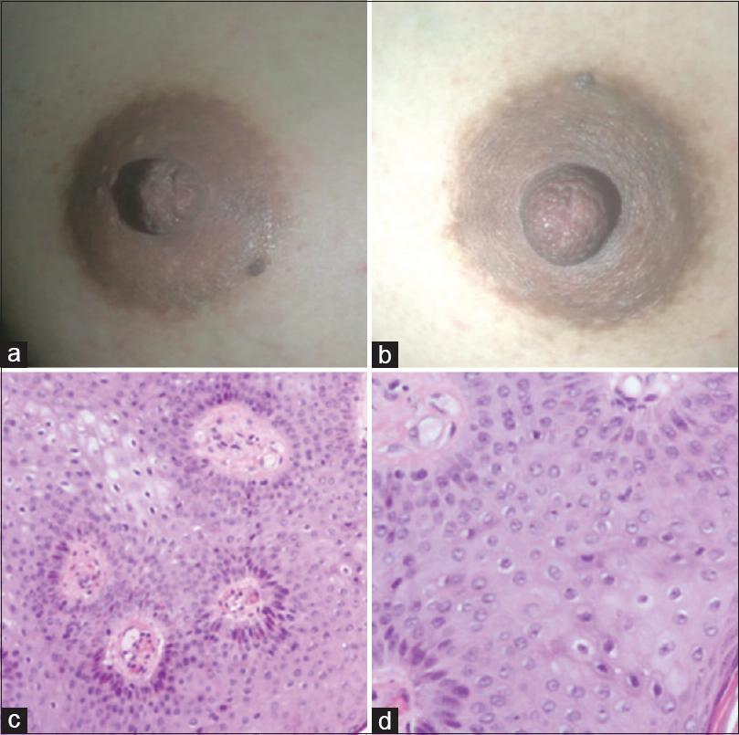 papilloma inverted treatment alimente pentru detoxifierea colonului