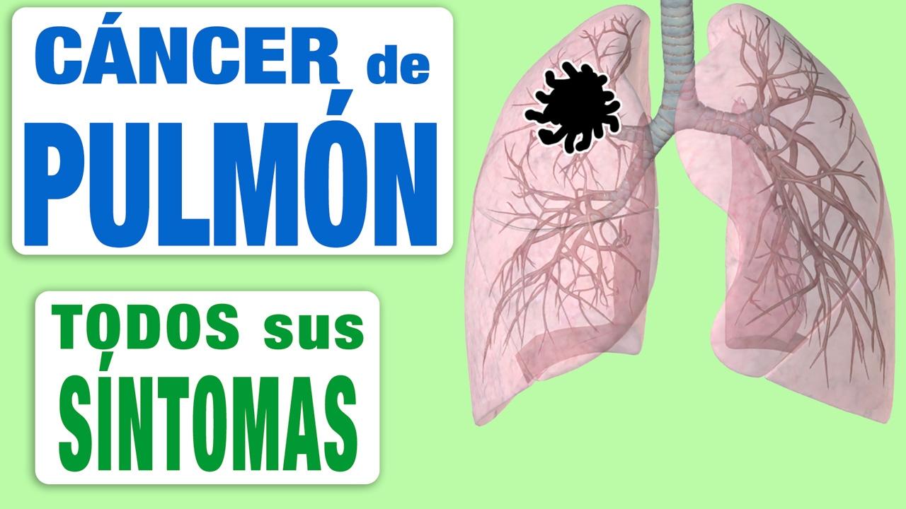 neuroendocrine cancer university of iowa contagio papilloma virus nelluomo