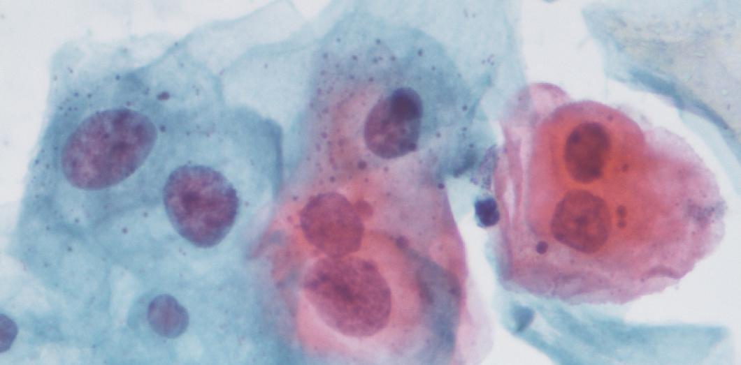 papillomavirus peut on tomber enceinte