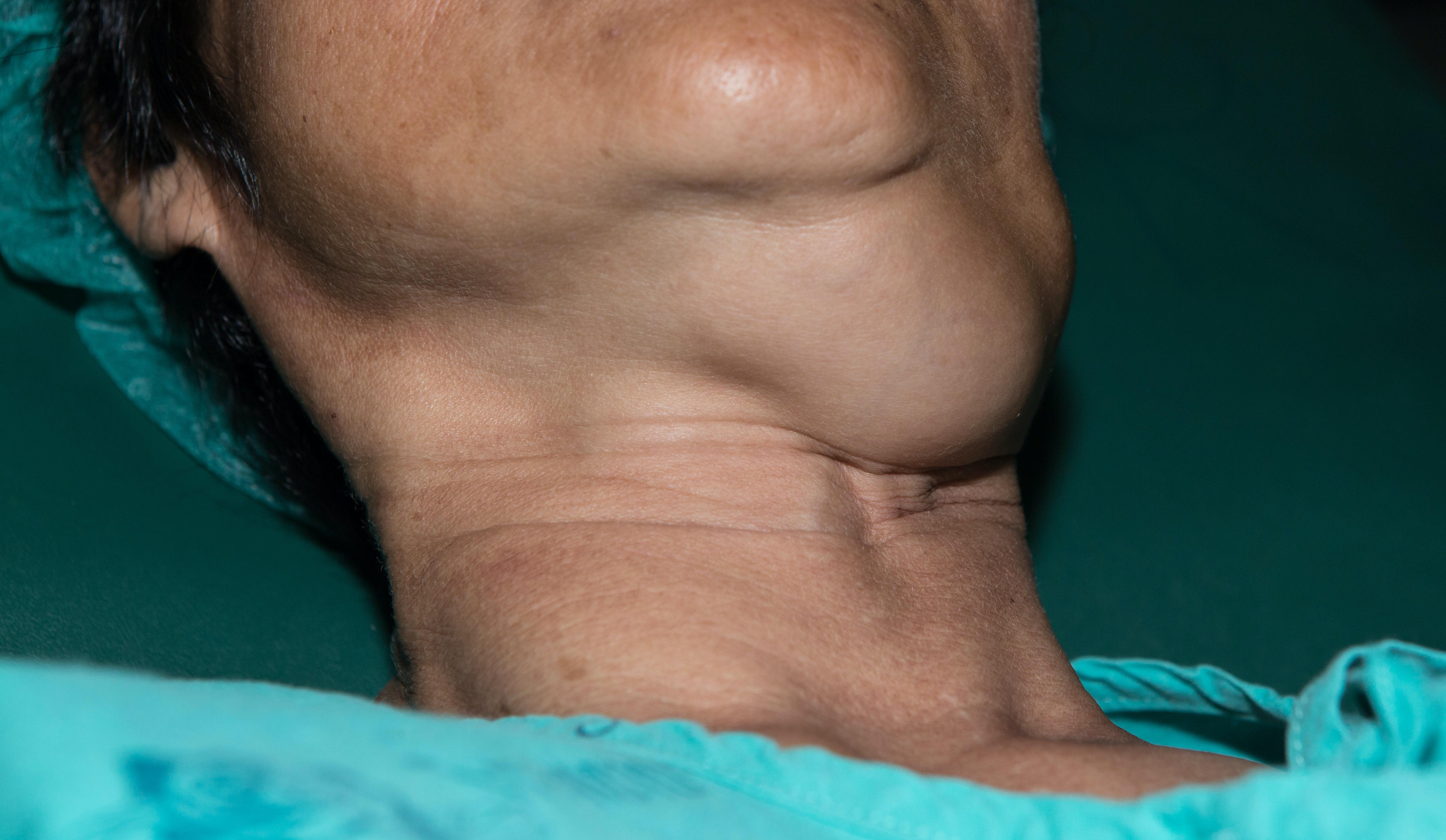 hpv neck lump